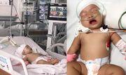 Bé gái 14 tháng tuổi bất ngờ bị khỉ nhà hàng xóm tấn công rách đầu, lún hộp sọ