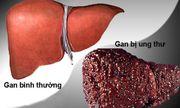 Loại đồ uống làm hại gan, tăng tỷ lệ tử vong