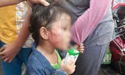 Vụ bé gái bị bảo mẫu tát rạn xương hàm: Phát hiện trong tai bé có máu bầm