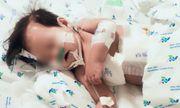 Nhiễm hai siêu vi khuẩn kháng thuốc, phổi bé gái chứa đầy dịch mủ