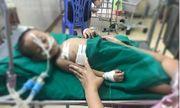 Nghệ An: Bé trai 19 tháng tuổi nghịch súng bị đạn găm vào ngực nguy kịch
