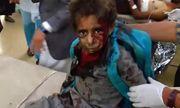 Xe buýt chở học sinh Yemen trúng tên lửa, ít nhất 43 người thiệt mạng
