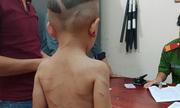 Tin tức pháp luật mới nhất ngày 17/8/2018: Bé trai 3 tuổi bị gã cha dượng đánh đập dã man