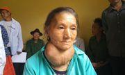 Người phụ nữ có khối u khổng lồ trên cổ