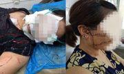 Tin tức đời sống mới nhất ngày 20/9/2018: Tâm sự cay đắng của người vợ bị chồng cắt đứt gân chân