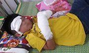 Bé trai 7 tuổi dập nát 2 bàn tay, tổn thương mắt vì nổ điện thoại đang sạc