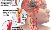 Bảo bối giúp ngăn chặn tai biến do mỡ máu tăng cao của người Nhật