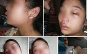 Mới sinh con hơn 1 tháng, vợ 16 tuổi lên mạng tố liên tục bị chồng bạo hành
