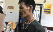 Người bố kể lại giây phút sợ hãi khi con trai bị chém nát chân ở Phú Thọ