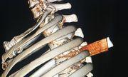 Lấy lưỡi dao gần 6 cm đâm thấu ngực bệnh nhân