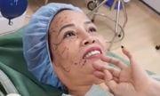 Cô dâu 61 tuổi đi hút mỡ bụng, cấy mỡ mắt để trẻ ra 20 tuổi