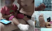 Bảo mẫu mở nhầm vòi nước nóng, bé gái 18 tháng tuổi bị bỏng 2 bàn chân