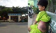 Đánh học sinh khuyết tật bầm tím, nữ giáo viên bị tạm đình chỉ 15 ngày