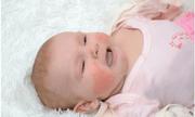 Các vấn đề về da ở trẻ nhỏ vào mùa đông