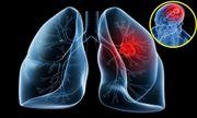 Những kiến thức cơ bản về ung thư phổi di căn não bệnh nhân cần biết