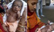 Chào đời với 3 cánh tay, bé gái Ấn Độ được tôn thờ như một vị thần