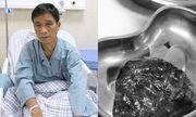 Bệnh nhân may mắn phát hiện bệnh ung thư phổi nhờ đi khám ho khan