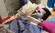 Vụ Việt kiều bị tạt axit, cắt gân chân: Thu giữ lọ axit hung thủ vứt lại hiện trường