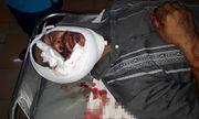 Hỗn chiến lúc bàn chuyện làm ăn, một người đàn ông bị đánh bằng tuýp sắt đến tử vong