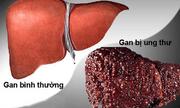 Liệu bạn có nằm trong kiểu người dễ mắc bệnh ung thư gan không?