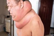 Sức khoẻ - Làm đẹp - Người đàn ông 13 năm sống trong