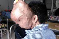 """Hoàn cảnh - Khối u """"ăn"""" não, người đàn ông đau đớn đợi phẫu thuật"""