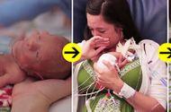 Đời sống - Sự thay đổi khó tin sau 1 năm của bé sinh non, nhỏ bằng quả dưa chuột