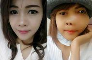Đời sống - Cô gái xinh đẹp gây sốc với khuôn mặt dị dạng vì ung thư xương
