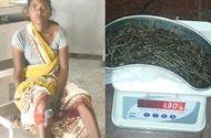 Đời sống - Mắc bệnh lạ: Người phụ nữ đau đớn vì hơn 70 cây kim ẩn sâu trong chân