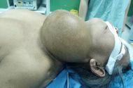 Đời sống - Cắt bỏ thành công khối u nặng 2kg nằm trên cổ bệnh nhân suốt 40 năm
