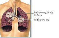 Y tế sức khỏe - Thuốc lá nguyên nhân chính gây ra ung thư phổi