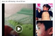 Tin tức - Cháu bé bị thâm tím khắp người, gia đình nghi bị giáo viên bạo hành