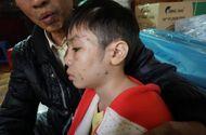 Giáo dục - Bé trai 10 tuổi bị bố và mẹ kế bạo hành từng là học sinh giỏi hai năm liền
