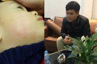 Tin trong nước - Bác sĩ tát đỏ mặt trẻ 22 tháng trong lúc chữa bệnh
