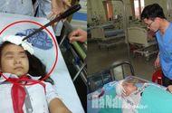 Tin tức - Vụ nữ sinh bị bạn phi dao trúng trán: Bộ GD&ĐT chỉ đạo