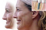 Cần biết - Tiêu xương do mất răng? Bạn không cần phải lo lắng!
