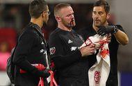 Tin tức - Rooney chảy máu, khâu 5 mũi sau khi ghi bàn thắng đầu tiên cho DC United