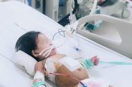 Tin tức - Đau lòng bé gái 20 tháng tuổi tróc da toàn thân bỏng nước sôi trong ấm đun siêu tốc