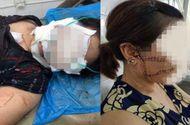 Tin tức - Tin tức đời sống mới nhất ngày 20/9/2018: Tâm sự cay đắng của người vợ bị chồng cắt đứt gân chân
