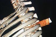Y tế - Lấy lưỡi dao gần 6 cm đâm thấu ngực bệnh nhân