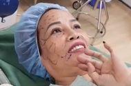 Tin tức - Cô dâu 61 tuổi đi hút mỡ bụng, cấy mỡ mắt để trẻ ra 20 tuổi