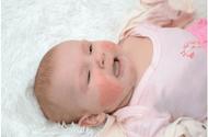Sức khoẻ - Làm đẹp - Gợi ý cách điều trị bệnh da khô ở trẻ