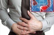 Sức khoẻ - Làm đẹp - 4 nguyên tắc giảm nhẹ triệu chứng viêm đại tràng
