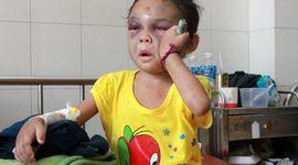 Sự kiện: Bé 4 tuổi bị cha mẹ đánh đập dã man ở Bình Dương