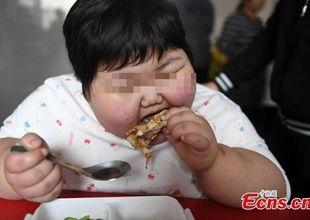 Bé gái 7 tuổi nặng 75kg, đi đâu cũng cần người khiêng