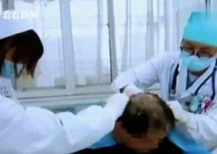 Người đàn ông Trung Quốc bị ngộ độc nặng vì nhầm thuốc trừ sâu thành dầu gội đầu