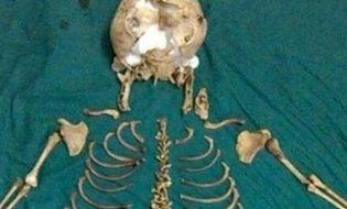 Khám phá - Chuyện lạ: Bào thai nằm suốt 36 năm trong bụng mẹ