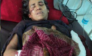 Thế giới 24h - Một phụ nữ giết chết báo trong trận chiến sinh tử