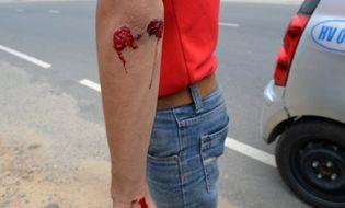 Pháp luật - 4 phóng viên bị côn đồ tấn công khi đang tác nghiệp