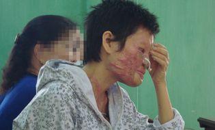 Gia đình - Cuộc đời khốn cùng của người đàn bà bị chồng tạt axít mù mắt